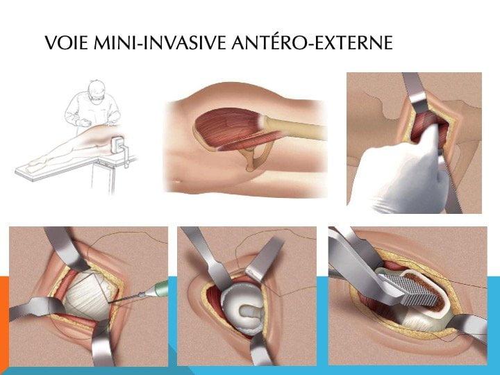 Abord mini-invasif hanche