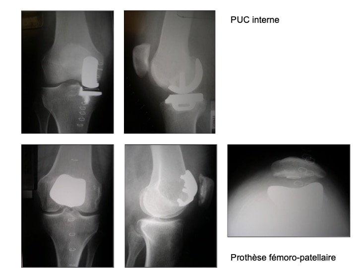 Prothèses partielles du genou