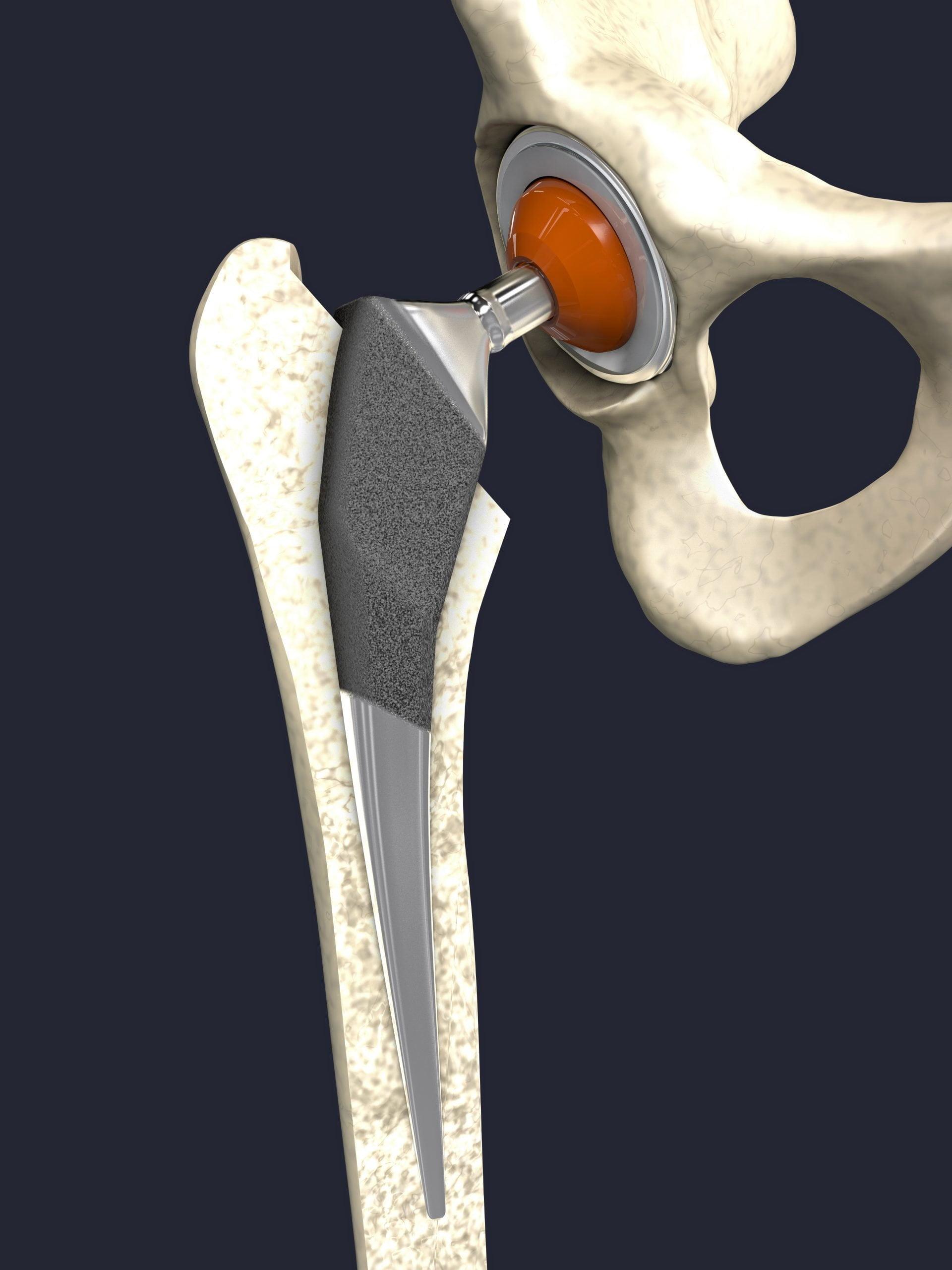 Prothèses Totales du Genou
