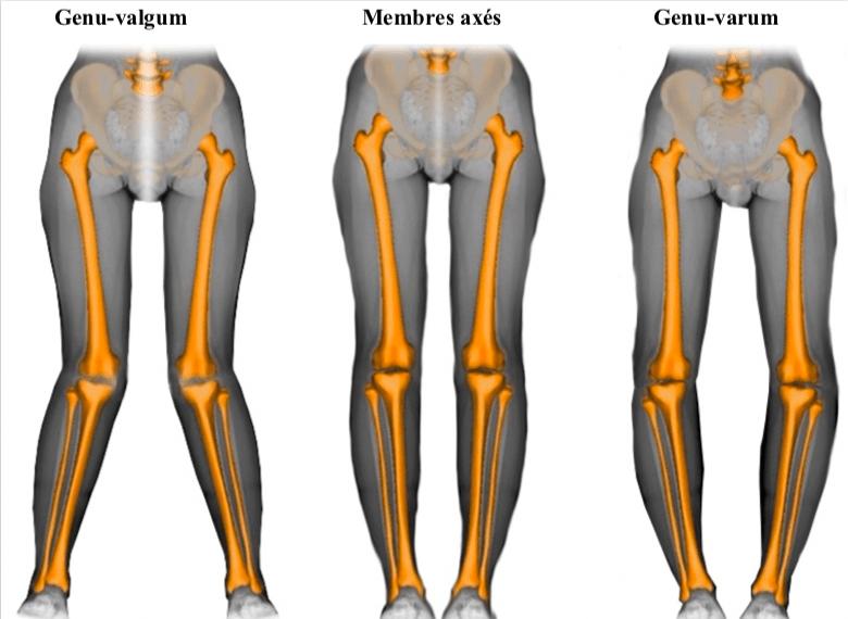 Déformations du genou