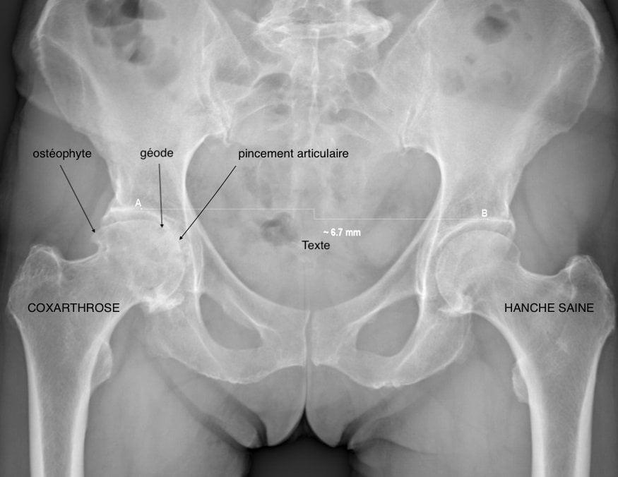 Arthrose de hanche